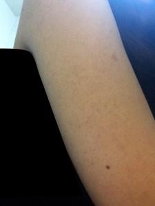 1週間経過後の毛孔性苔癬