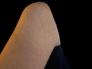 二の腕硬毛化写真